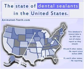 Snapshot picture of infographic: Dental Sealants in the USA.